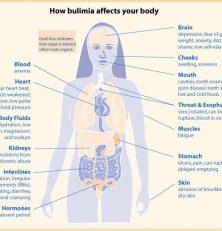 Om bulimi